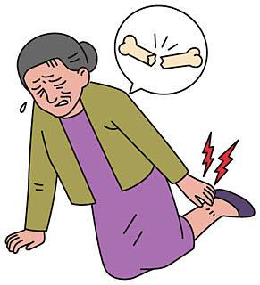 高齢な女性ほど骨が弱くなり易い